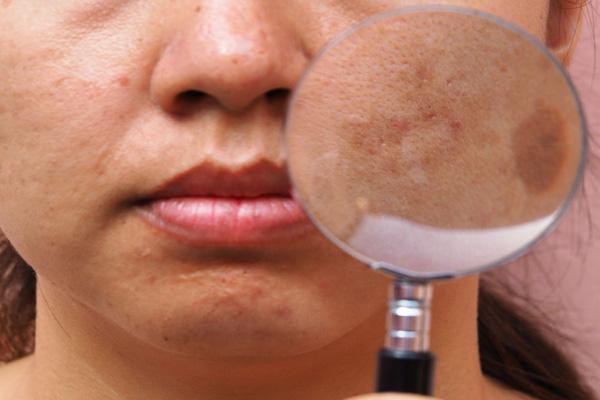 ospw skin types