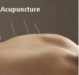 Acupuncture: Questions et Réponses