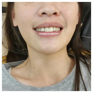 foto, gambar, gigi depan keropos Permata Dental Bali| sebelum dan sesudah gigi keropos diperbaiki di Permata Dental Bali | foto gigi keropos hitam Permata Dental Bali |gigi keropos karena sakit | gigi keropos berlubang | gigi keropos depan| gigi keropos bagian belakang | foto gigi keropos yang sudah diperbaiki Permata Dental Bali |  gigi keropos bagian depan| foto gigi keropos dan patah, foto gigi keropos oleh Permata Dental Bali, Bali Hits, Bali banget, area Bali, Bali kota, area kampus bali. veneer gigi keropos  Bali | veneer gigi keropos badung | veneer gigi keropos nusadua | veneer gigi keropos ngurahrai| veneer gigi keropos denpasar | veneer gigi kropos denpasar kota | veneer gigi keropos Bali | veneer gigi keropos gatsu | |veneer gigi keropos|  depan | veneer gigi keropos  atas | veneer gigi keropos  bawah | veneer gigi keropos  belakang |veneer gigi berlubang bali| veneer gigi berlubang Bali | veneer gigi berlubang nusadua| veneer gigi berlubang ngurahrai| veneer gigi berlubang Badung | veneer gigi berlubang depasar kota | veneer gigi berlubang denpasar| veneer gigi berlubang gatsu| veneer gigi berlubang jimbaran| veneer gigi berlubang bagus Permata Dental Bali | veneer gigi berlubang baik di Permata Dental Bali | veneer gigi berlubang cepat di Permata Dental Bali | veneer gigi berlubang murah di Permata Dental Bali | veneer gigi berlubang aman | veneer gigi berlubang mudah di Permata Dental Bali | veneer gigi berlubang promo Permata Dental Bali | gambar veneer gigi berlubang Permata Dental Bali | gambar sebelum dan sesudah veneer gigi hitam dan berlubang  veneer gigi hitam Bali | veneer gigi hitam Bali | veneer gigi hitam denpasar | veneer gigi hitam jimbaran | veneer gigi hitam nusadua | veneer gigi hitam Bali kota | veneer gigi hitam ngurahrai| veneer gigi hitam badung | veneer gigi hitam gatsu | veneer gigi hitam bagus | veneer gigi hitam baik | veneer gigi hitam cepat di Permata Dental Bali | veneer gigi hitam murah di Permata Dental Bali | veneer gigi h