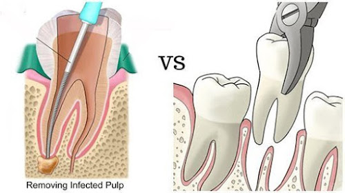 Removal of tooth is alternative treatment of RCT