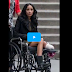 Video Amputee beautiful girls I'm glad they're popular :