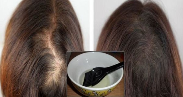 Extremely Effective 1 Ingredient Hair Mask that Will Save and Regrow Your Hair