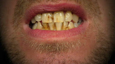 Cigarette Stain On teeth