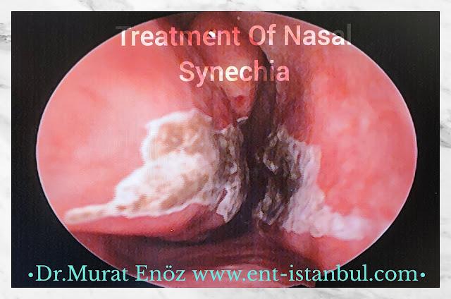 Treatment of  Nasal Synechia