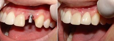 tư vấn cấy ghép răng implant -5