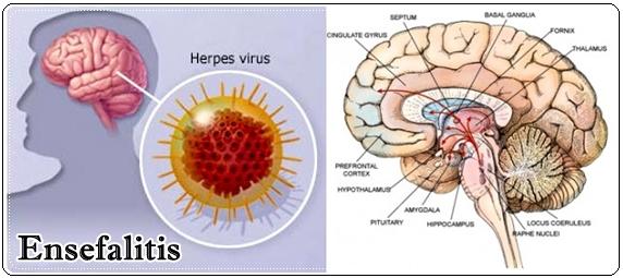 http://www.pusatmedik.org/2017/01/radang-otak-definisi-penyebab-dan-pengobatan-serta-pencegahan-radang-otak-menurut-ilmu-kedokteran.html
