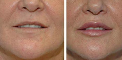 Before and After view of Lips and face as Fillers Injected for Youthful Looks