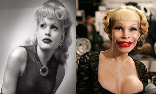 Transsexual amanda lepore silicone injections photo 17