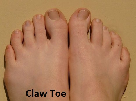 The Claw Toe