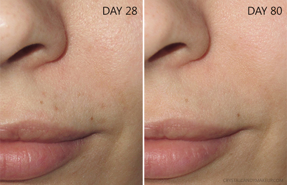 SkinCeuticals Blemish Age Defense Serum Results Before After 3 Months