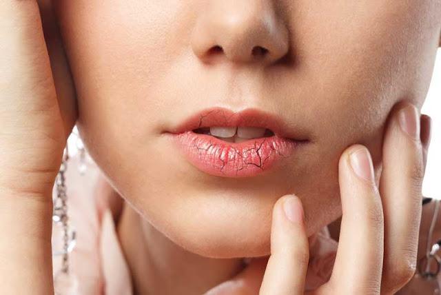 सर्दी में हमारे हाथ और होंठ क्यों फट जाते हैं - Why do our hands and lips crack in winter