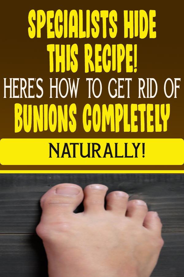 Specialists HIDE THIS RECIPE! HERE'S HOW TO GET RID OF BUNIONS COMPLETELY NATURALLY!