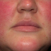 People with rosacea are at higher risk of Alzheimer's