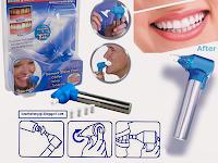 Luma Smile Alat Pemutih Gigi Berkualitas yang Dapat Membersihkan Noda Gigi