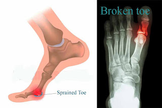 sprained toe vs broken toe