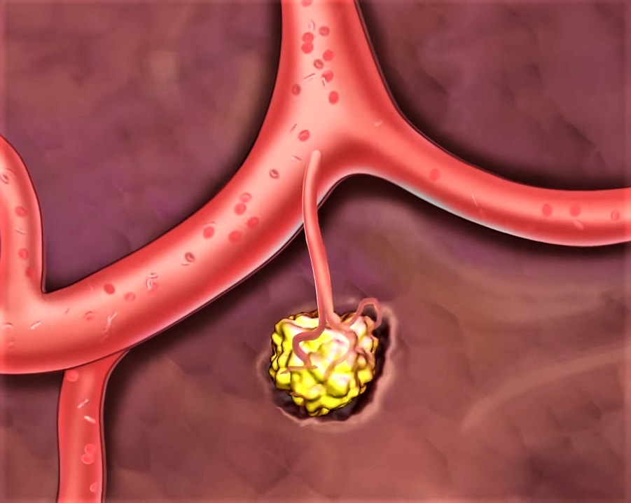 Illustration of cancer development and spread in the human body.