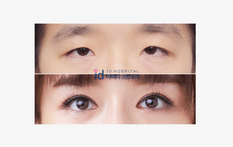 Non incision eyelid surgery recovery photo