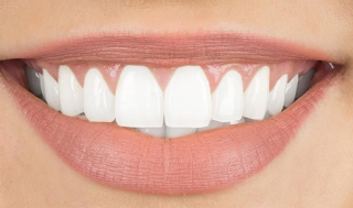 17 Ways to Whiten Yellow Teeth Naturally