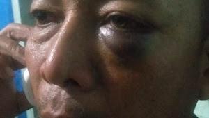 Pukuli Petugas Dishub Samosir, Honorer Ini Akhirnya Diciduk Polisi