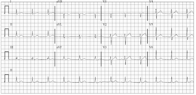 ECG of Accelerated junctional rhythm