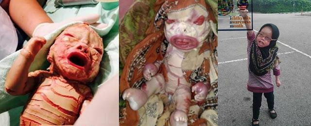 Kisah Dania: Bayi yang Lahir dalam Kondisi Nestapa, Kini Usianya 6 Tahun