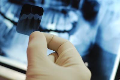 những điều cần biết về bọc răng sứ -5