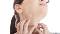 Obat Gatal Alergi Kulit Terbaik Paling Ampuh dan Aman