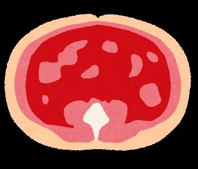 内臓脂肪のイラスト
