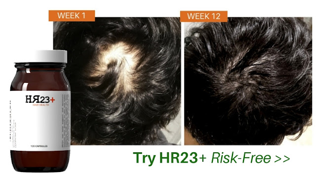 HR23+ hair loss treatment pack for men