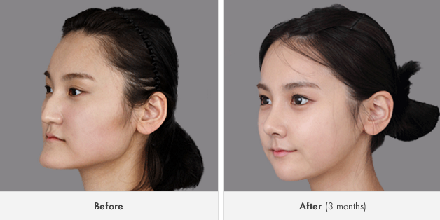 Images of Korean Nose Filler - #rock-cafe