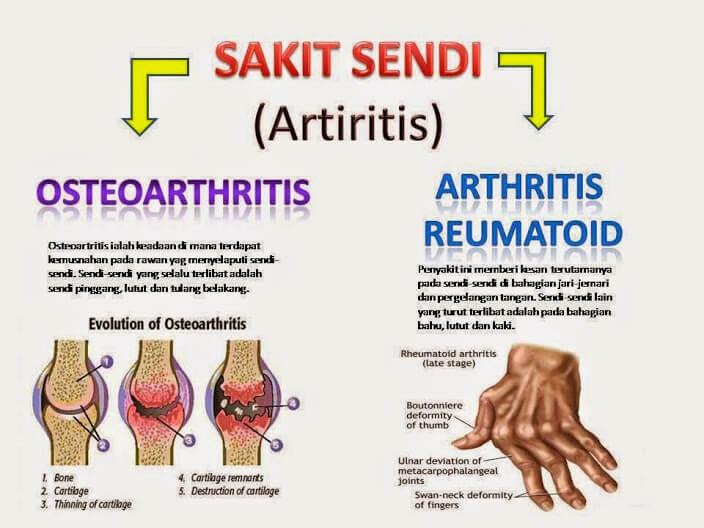 Apa itu Penyakit Arthritis