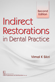 Indirect Restorations in Dental Practice 2nd Edition