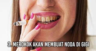 Merokok akan Membuat Noda di Gigi