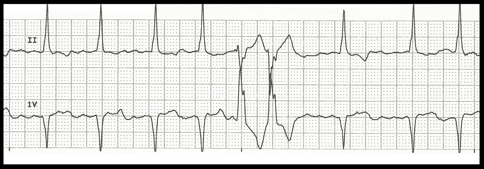 Float Nurse: EKG Rhythm Strip Quiz 178