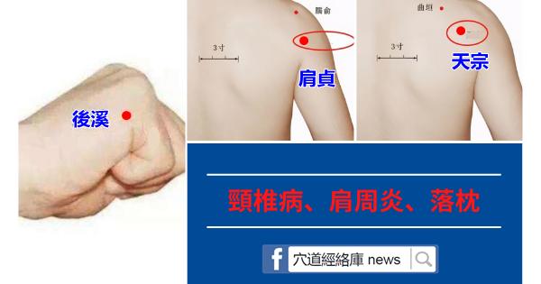 頸椎病、肩周炎、落枕,按按手臂上一條線,全部解決(小腸經)