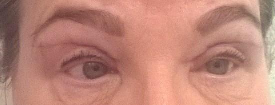 Silmäluomileikkaus