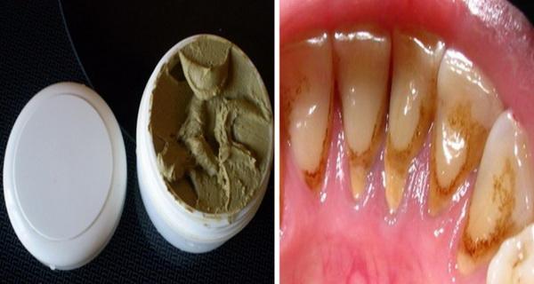 aceasta pasta de dinti te scapa de placa bacteriana