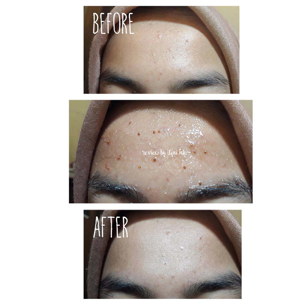 Skinfood Black Sugar Strawberry Mask Wash Off Review Best Scrub Skin Food Before Foto Diambil Sehabis Pulang Kerja Dan Belum Cuci Muka When Using Setelah Pakai Face Langsung