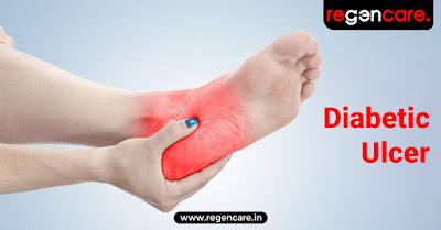 diabetic-ulcer