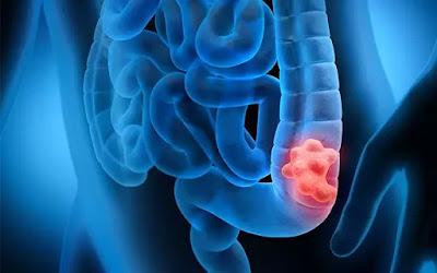 أسباب سرطان القولون
