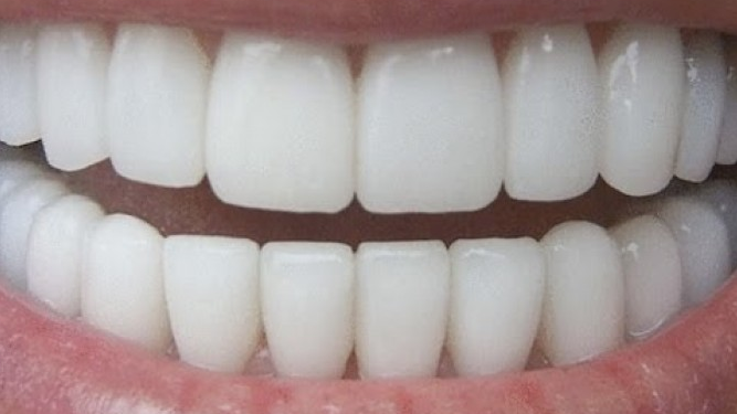 How To Whiten Your Teeth In Three Minutes