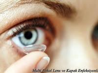 Multi Fokal Lens Ve Kapak Enfeksiyonları