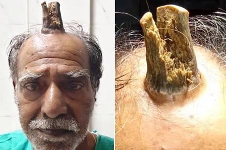 Homem tem 'chifre' de 10cm removido em cirurgia