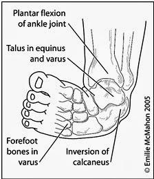 wong jowo: Apa Itu kelainan kaki pengkor? apa penyebabnya?