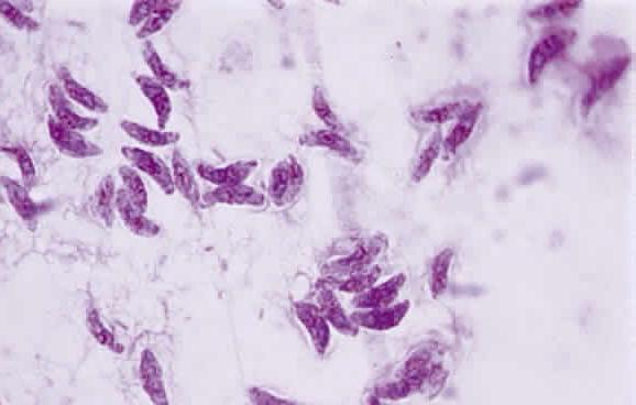 Pengobatan toxoplasma di otak dengan konsep karnus