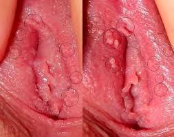 Cara Mengobati Tumbuh Daging Pada Lubang Vagina Dan terasa Gatal