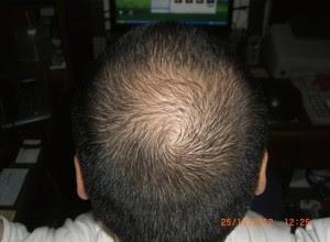 Pemakaian Minoxidil Pada Bulan Oktober yang Ampuh Menumbuhkan Rambut Botak