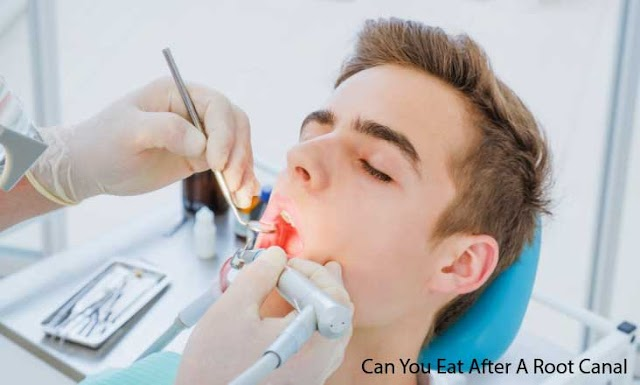 What Can You Eat After A Root Canal Treatment