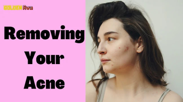 Easy Assistance For Removing Your Acne