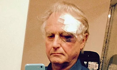 Dawkins, wounded